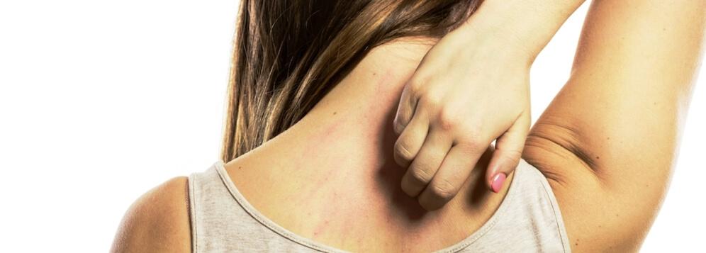 Проявление аллергии на коже у детей, взрослых