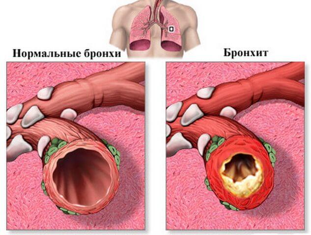 Хронический бронхит: симптомы, причины, лечение