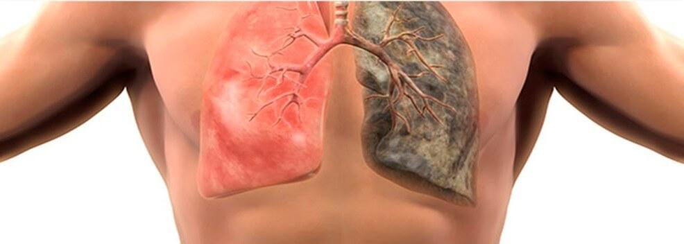 Хронічний бронхіт: симптоми, причини, лікування