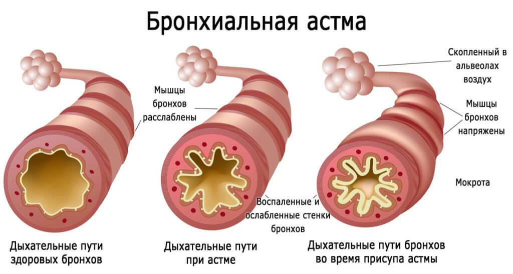 Бронхіальна астма у дітей: симптоми, причини, лікування