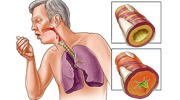 Чем лечить кашель при бронхите: влажный, сухой